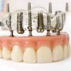 fabricantes protesis dentales
