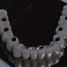 Ventajas y desventajas de una prótesis sobre un implante