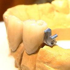 Ventajas de una prótesis fija